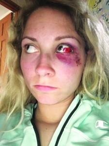 Cross' eye a few days after her injury.